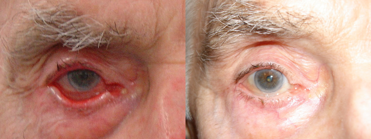Ectropion - Before and After Treatment