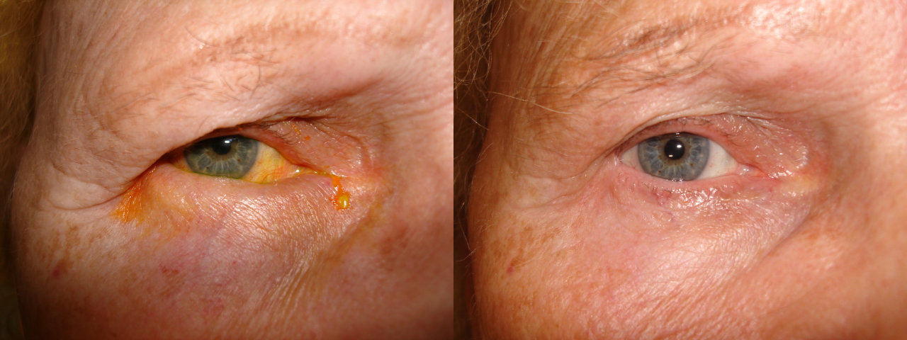 Entropion - Before and After Treatment
