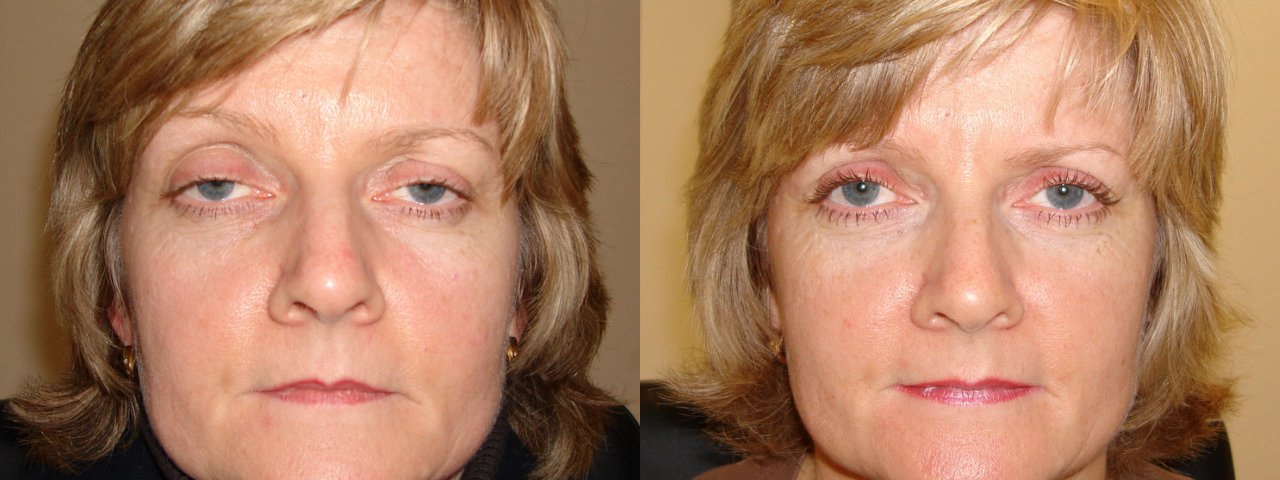 Ptosis - Before and After Treatment